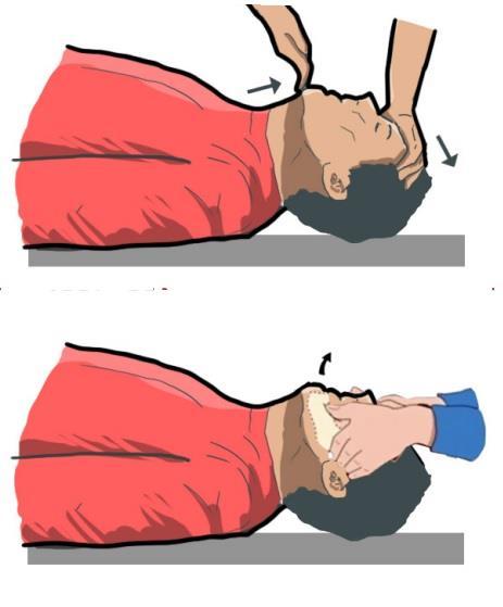Gambar menunjukan membuka pernafasan korban kecelakaan