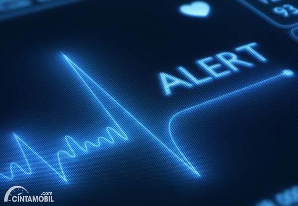 Hati-hati Serangan Jantung Saat Nyetir Mobil, Kenali Penyebabnya