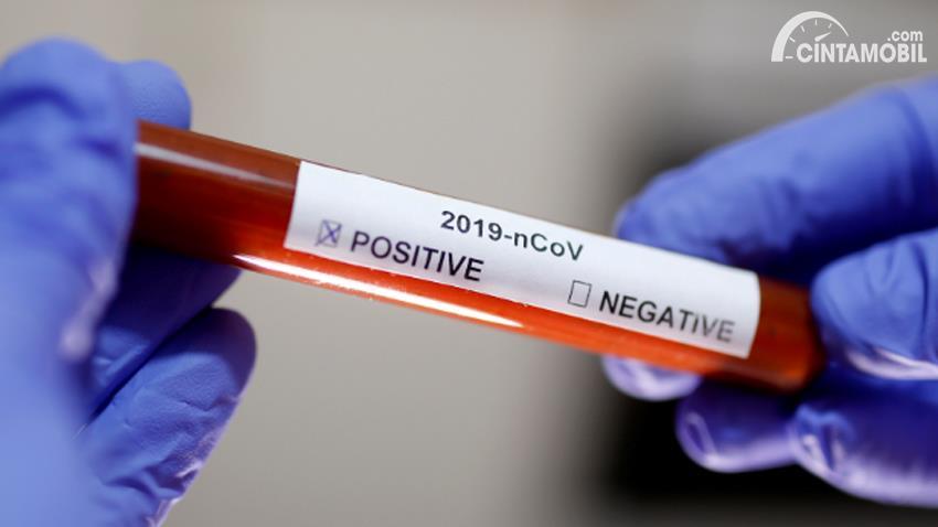 Gambar menunjukan Virus Corona